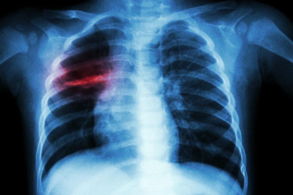 В Запорожской области учитель «подцепил» туберкулез: в школе бьют тревогу