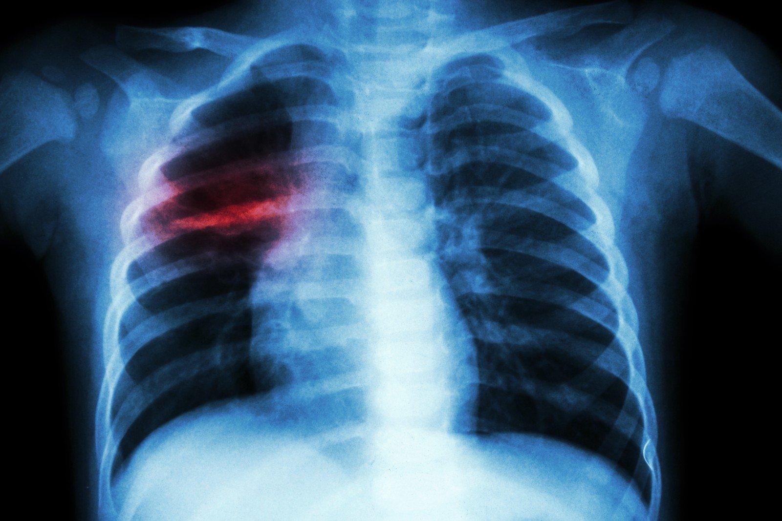 tuberkuliozes-zidinys-plauciuose-74918112