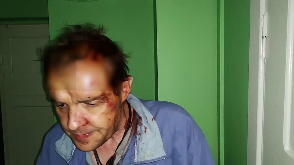 В Запорожье субарендаторы побили лопатой и ограбили хозяина квартиры: полиция отпустила преступников (ФОТО 18+)