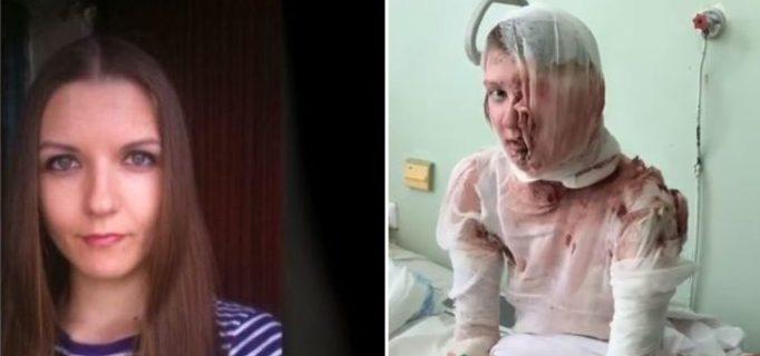 Настя Шаповалова, которую муж облил кипятком, вернулась к возлюбленному